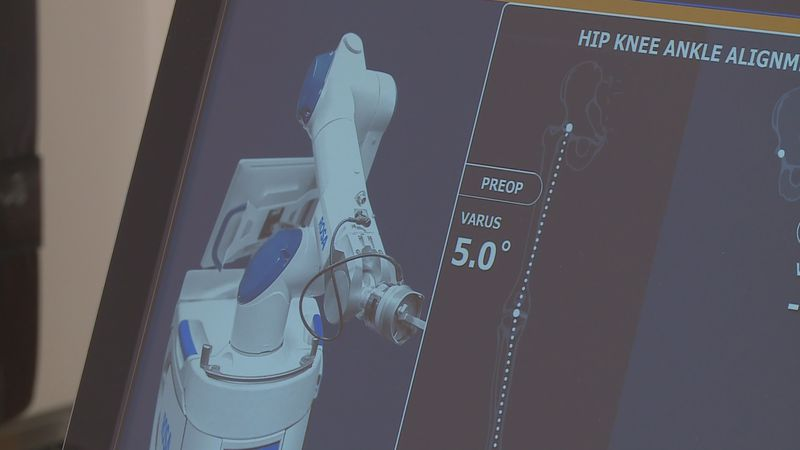 """""""Rosa"""" Robotic Tool at Stormont Vail Hospital for total knee replacement surgery. (April 2, 2021)"""